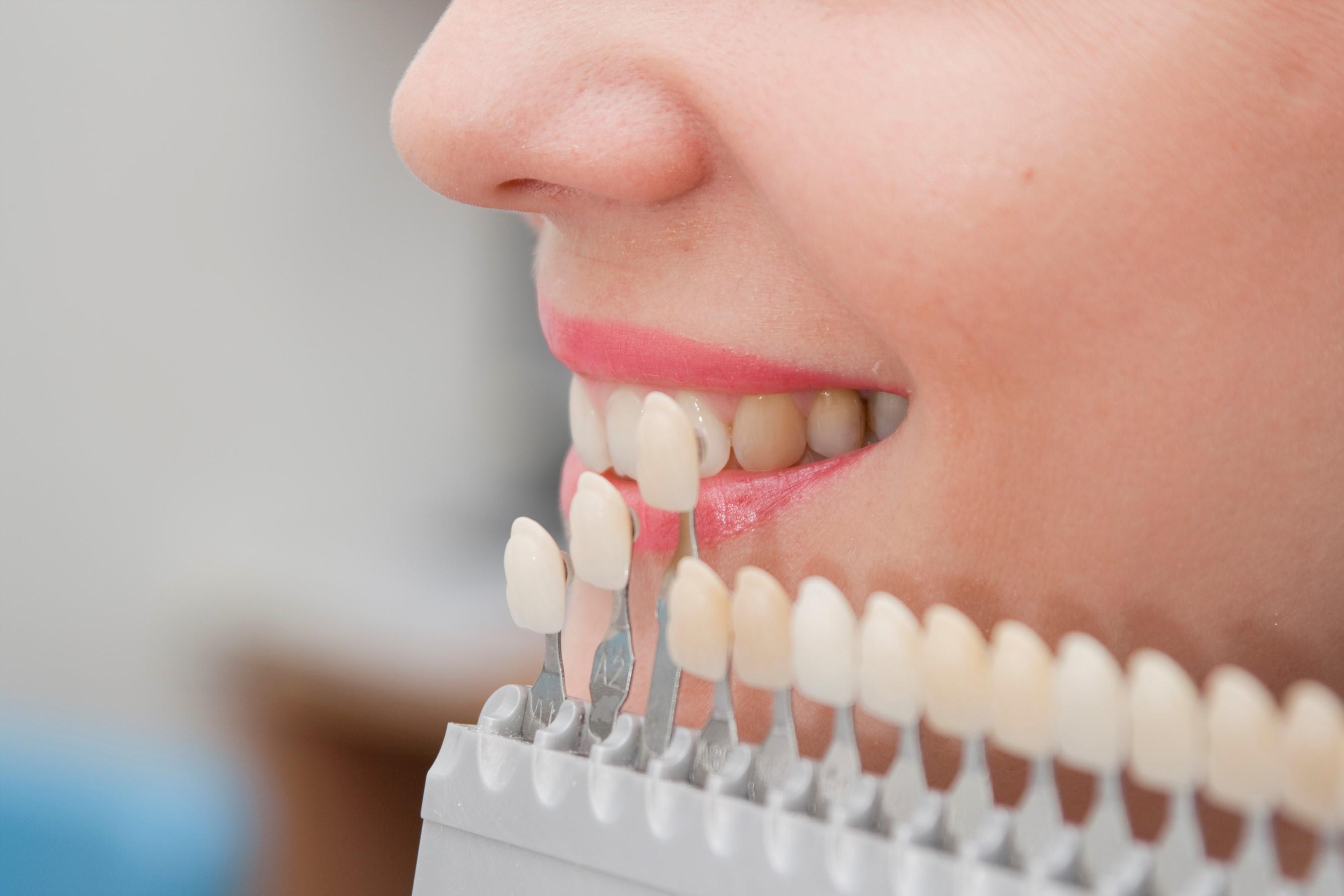 Conoce los servicios de la clínica dental Valdivia & Armijo