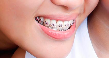ortodoncia_en_malaga