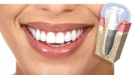 implantes-dentales-ortodoncia-estetica-protesis-fija-5455-MLA439732720_438-O.jpg