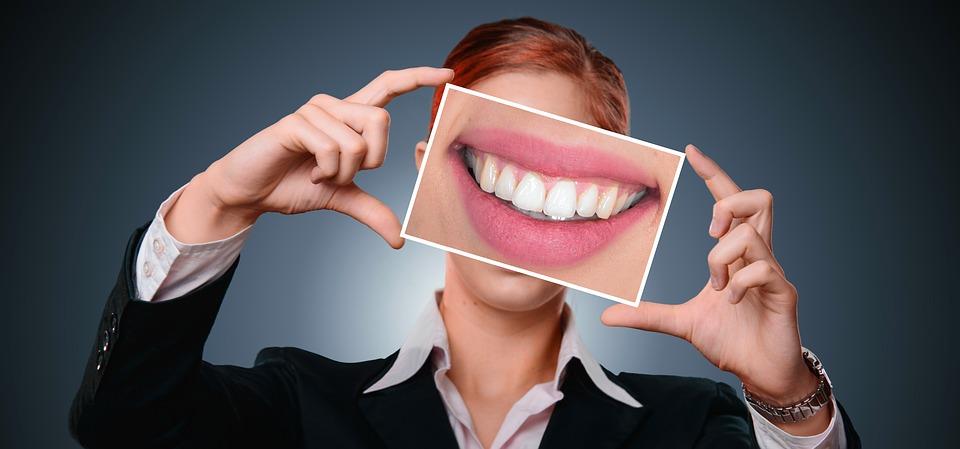 dientes-amarillos.jpg