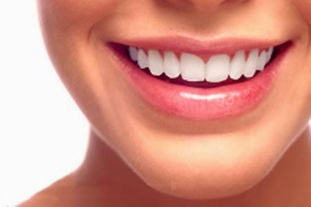 sonrisa con Invisalign, la ortodoncia transparente