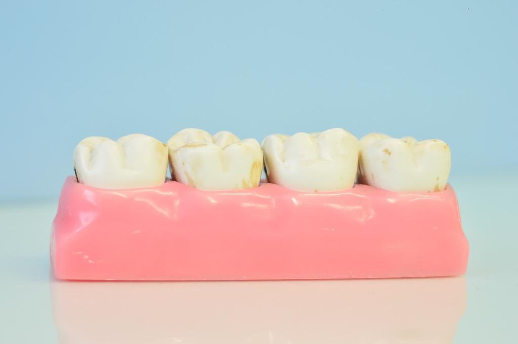 hand-mouth-human-body-organ-teeth-tooth-610535-pxhere.com_.jpg